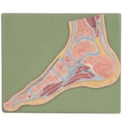 足关节剖面模型 YJ/G0065