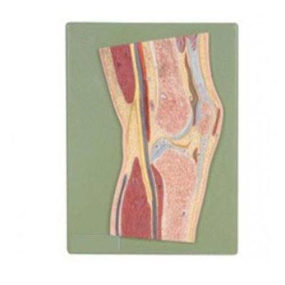 膝关节剖面模型 YJ/G0066