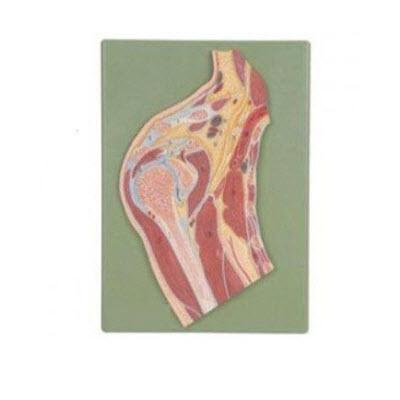 肩关节剖面模型 YJ/G0070