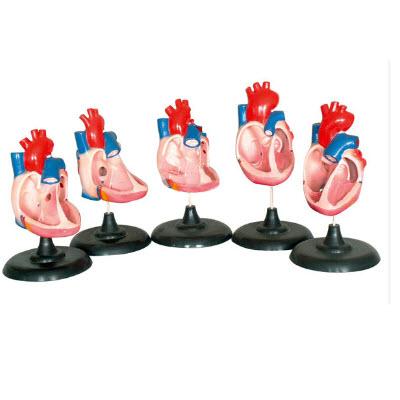 先天性心脏畸形模型 YJ/ZZ2066