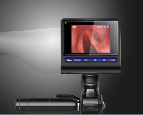 MBC便携式可视喉镜