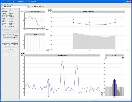 畸变产物耳声发射--DPOAE20