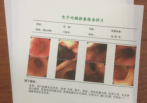 激光瓷白片(胃肠镜)
