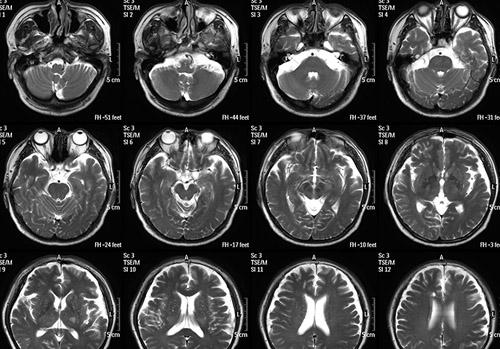 14X17脑MRI2