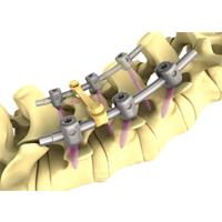 PINE II OPFIX PLUS脊柱内固定系统