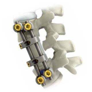 PINE-II 胸腰椎前路系统