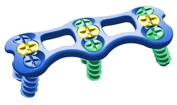 卡地亚颈椎前路内固定系统