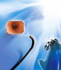 电子胃镜GIF-Q180