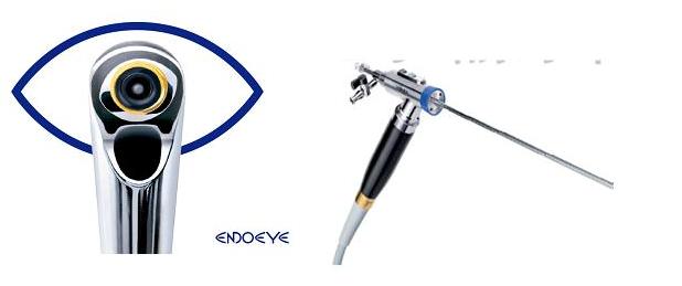 硬性电子输尿管镜