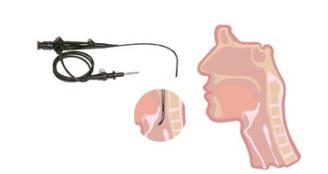 纤维鼻咽喉内镜系列