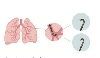 便携式纤维支气管内镜系列
