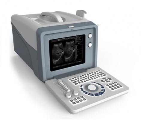 XF218数字B型超声诊断仪(便携式)