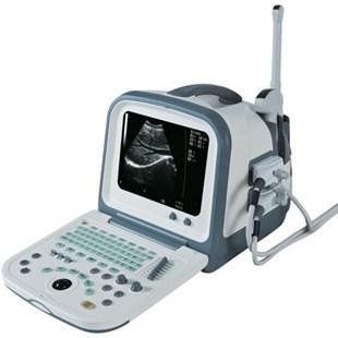 全数字便携式彩色超声诊断仪